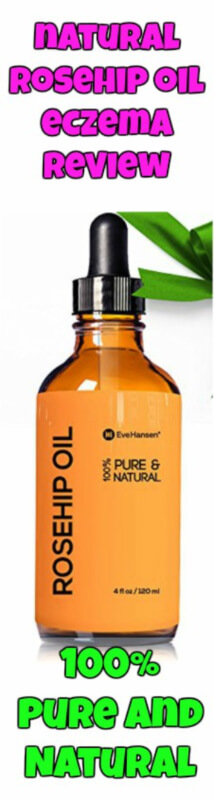 Natural Rosehip Oil contains all natural unprocessed and unadulterated ingredients that makes it a 100% pure and natural oil