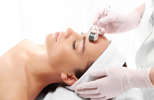 A-woman-undergoing-microneedling